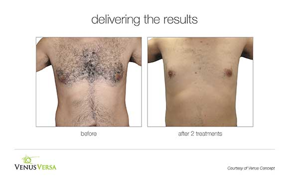 Venus Versa Hair Removal - Before & After