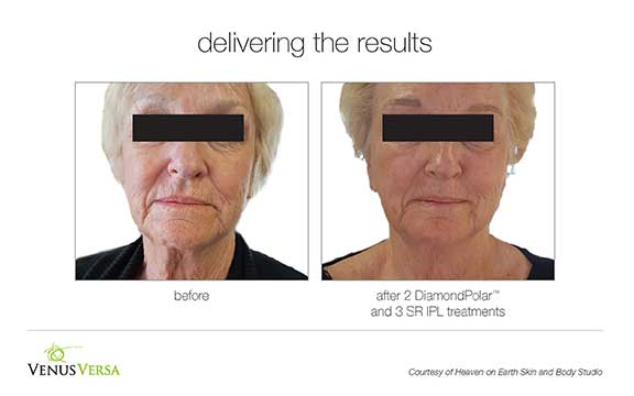 Venus Versa Photofacial Before & After