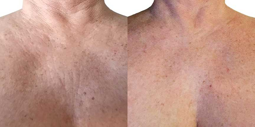GlycoAla Anti Aging Gel - Before & After